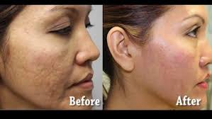 light therapy for acne scars what should i do to reduce my pimple and pimple marks on my face and