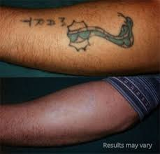 cost laser tattoo removal in fort wayne dr rettenmaier