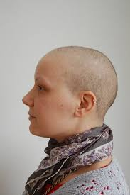 after chemo hairstyles weeks 3 4 and 5 hair growth after chemo