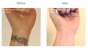 tattoo removal london tattoo removal cost and free quotation we call you