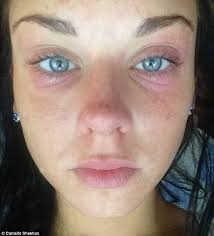 light therapy for eczema danielle sheehan s life transformed after botox eradicates her