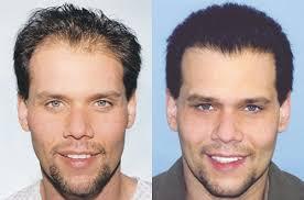 hair plugs for men hair transplant the skin center for men