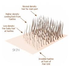 hair transplant calculator the technics to reach a perfect transplantation density