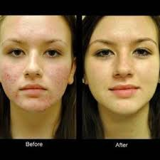 micro needling before and after google search micro needling