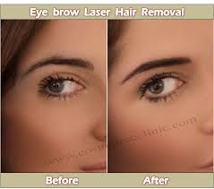 how much does laser hair removal cost on back eyebrow laser hair removal cosmotree clinic in delhi
