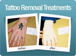 laser tattoo removal bradford tattoo removal treatment huddersfield