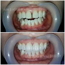 han u0026 hong dental surgery home facebook