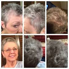 before and after hair styles of faces 55 best before after photos images on pinterest thinning hair