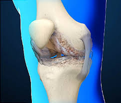 Webmd Human Anatomy Osteoarthritis Video Causes And Treatments Of Joint Pain