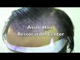 hair transplant costs in the philippines dr arambulo performs hair transplant the medical city