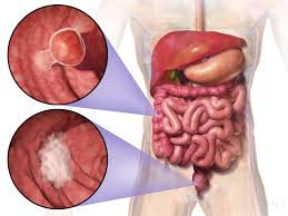 Right Side Human Anatomy Colon Cancer Appears Deadlier On The Right Side