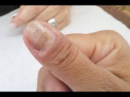 what causes of ridges in your finger and toenails here are the