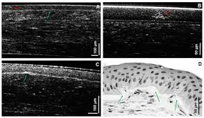 osa sub micrometer axial resolution oct for in vivo imaging of