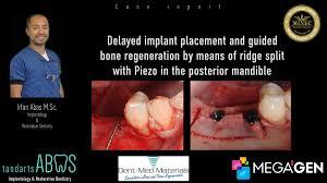 guided bone regeneration guided bone regeneration by means of ridge split with piezo megagen