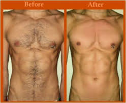 male pubic hair removal photos bronde hair removal with additional cork male waxing hair removal