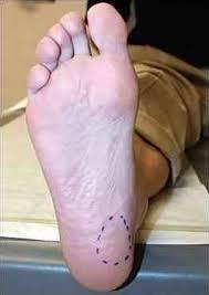 Planters Fasciitis Surgery by 115 Best Plantar Fasciitis Heel Spurs U0026 Foot Pain Images On
