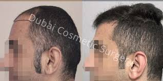 hair transplant costs in the philippines hair transplant cost in dubai abu dhabi uae dubai cosmetic