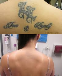 tattoo removal shoulder tattoo removal rsvp med spa kansas city s top medical spa
