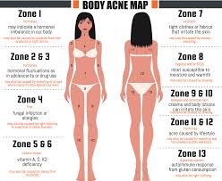 me a map of where i am what does acne reveal about your health acne map
