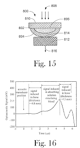 patent us6498942 optoacoustic monitoring of blood oxygenation