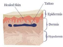 which is the best tattoo removal method claritas laser clinic