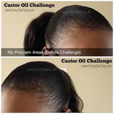 kalojoni seed oil hair scalp castor oil challenge before after fancyflairlady