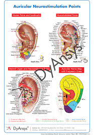 Spine Map Auricular Neurostimulation Poster Dyansys