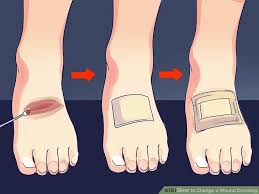 how to change a wound dressing 10 steps with pictures wikihow