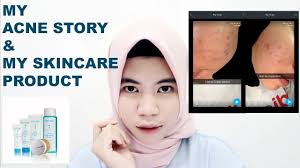Toner Wardah Berjerawat my acne story 1month my skin care product wardah acne