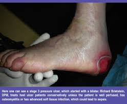 How To Get Rid Of Bed Sores Current Insights On Treating Heel Pressure Ulcers Podiatry Today