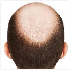 hair transplant costs in the philippines male hair transplant prices male hair transplant cost australia