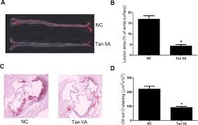 tanshinone iia suppresses the progression of atherosclerosis by