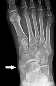 Avascular Necrosis Of The Metatarsal Head Foot Simon U0027s Emergency Orthopedics 7e Accessemergency