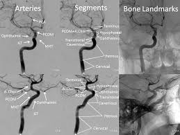 Ct Anatomy Of Brain Ppt Internal Carotid Artery And Its Aneurysms Neuroangio Org
