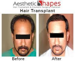 prescreened hair transplant physicians hair transplant in karachi best hair transplant in pakistan