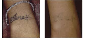 laser tattoo removal ablon skin institute dr glynis ablon