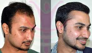 hair transplant costs in the philippines hair transplant cost jaipur hairsite com