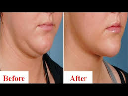 how to make a double chin look less noticable eith hair how to get rid of double chin permanently in 2 months without