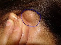 cancer of the ear cartilage large lipoma bump ears movable bumps pimples acne