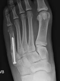 Subtalar Joint Fracture Expertise Dr John G Kennedy Md