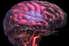 علائم و تشخیص سکته مغزی