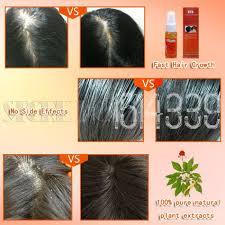 Natural Hair Growth Remedies For Black Hair Aliexpress Com Buy 3pc Natural Hair Loss Alopecia Areata