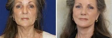 hairstyle to avoid sunken face hairstyle to avoid sunken sunken living rooms step down