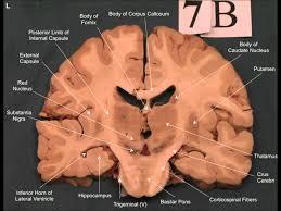 Image Of Brain Anatomy Neuroanatomy Coronoal Brain Slices Youtube
