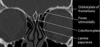 Ct Anatomy Of Brain Ppt Imaging Of Skull Base Pictorial Essay Raut Aa Naphade Ps Chawla