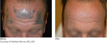 tattoo removal does it work does laser tattoo removal actually work aesthetic beauty