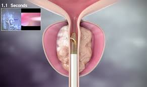 green light laser prostate surgery cost nxthera s rezūm provides a new treatment option for patients with