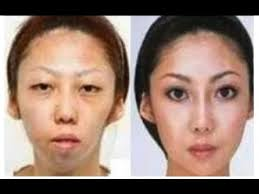 china uncensored man sues wife over secret plastic surgery and wins ntd china uncensored ntdonchina