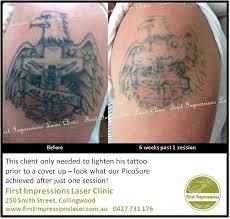 picosure tattoo removal chicago il best tattoo 2017