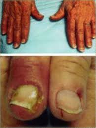 paronychia nail infection due to egfr inhibitors oncolink